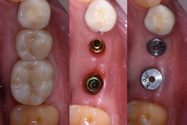 Резултати преди и след поставяне на импланти | ROI Dental Clinic
