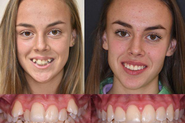 Блестяща усмивка след ортодонтско лечение | ROI Dental Clinic