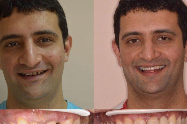 Резултати преди и след лечение с брекети Деймън | ROI Dental Clinic