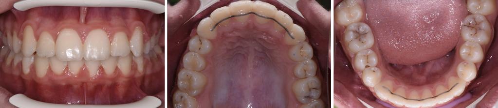 Лечение с брекети DAMON Q в ROI Dental Clinic