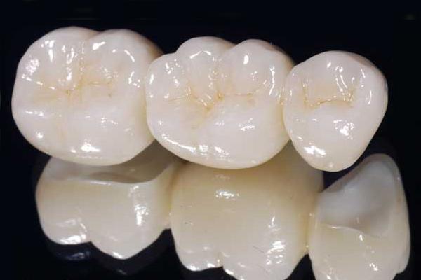зъбно протезиране в ROI Dental Clinic